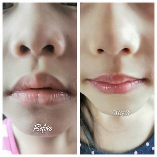 醫護級修護潤唇配方 急救唇部敏感脫皮