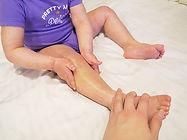sherice 濕疹 case5嬰兒濕疹 皮膚敏感 濕疹症狀 皮膚乾燥 濕疹藥膏