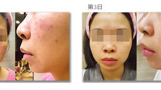 敏感皮膚案例 | 濕疹藥膏 | 臉上皮膚嚴重敏感泛紅的濕疹症狀