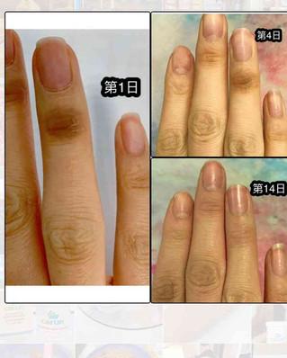 濕疹敏感有得救,由調理皮膚做起