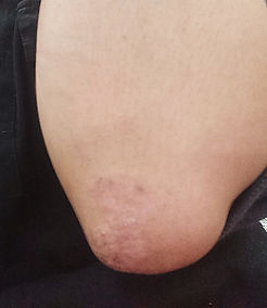 elbow after.jpg