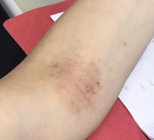 手背、手臂及膊頭附近起濕疹,一疊一疊的色素沉澱好難睇!令我非常擔心!