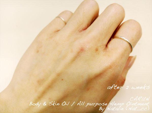 濕疹、嬰兒濕疹、敏感痕癢、皮膚乾燥、BB濕疹的個案分享。香港萬寧藥劑師推介的濕疹膏