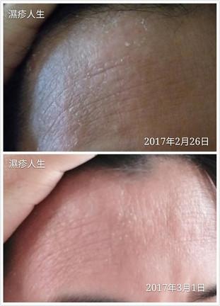 《濕疹人生》主事人 Dion 親試Carun卡倫萬用膏,4日後,濕疹皮膚明顯有改善,效果很好啊!