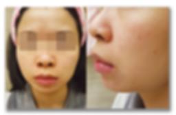 phoenix 濕疹 case2濕疹成功案例 | 香港 | Carun卡倫濕疹萬用膏萬寧藥劑師推介  濕疹首選 嬰兒濕疹膏