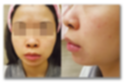phoenix 濕疹 case2濕疹成功案例   香港   Carun卡倫濕疹萬用膏萬寧藥劑師推介  濕疹首選 嬰兒濕疹膏