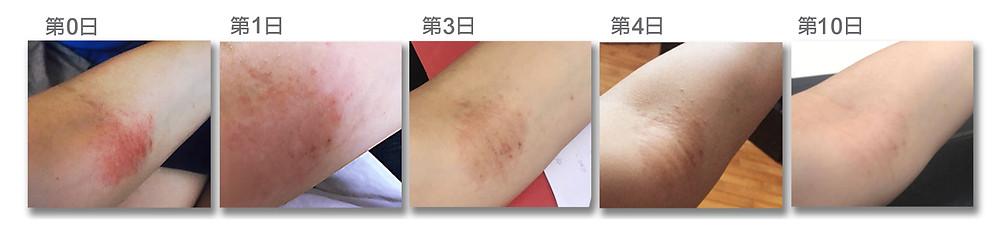 手背、手臂及膊頭附近起紅疹