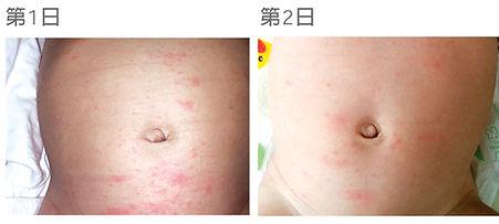 Carun嬰兒濕疹治療 case 2