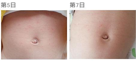 Carun嬰兒濕疹治療 case 1