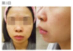 卡倫濕疹膏 皮膚敏感濕疹