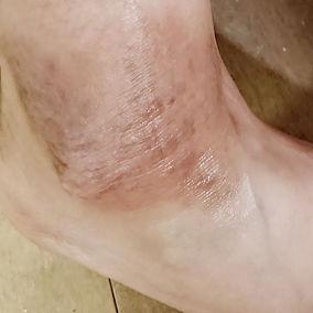 foot after 1.jpg