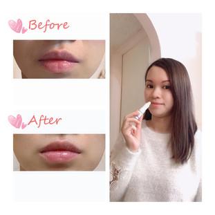 明顯減少唇紋 改善暗啞 回復唇部天然色澤