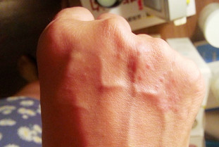 主婦手 | 濕疹調理 | 皮膚敏感  濕疹手又紅又癢