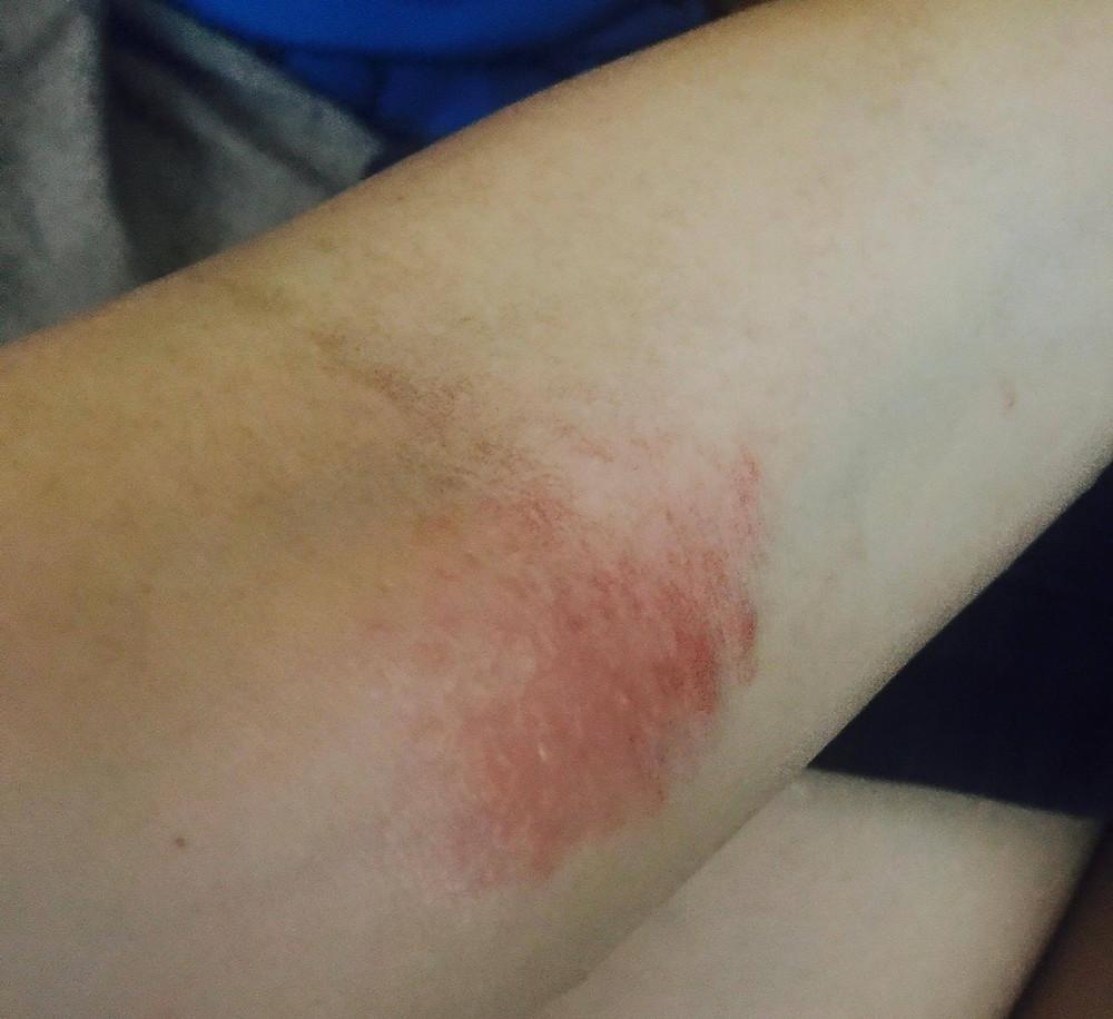 Irene 手背、手臂及膊頭附近起紅疹 1