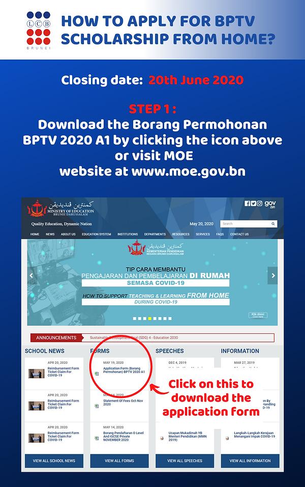 BPTV Procedure (1).png