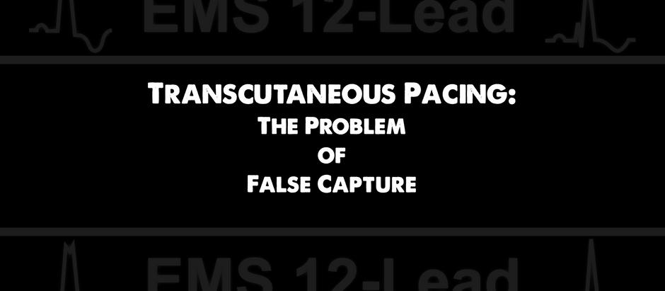 Transcutaneous Pacing (TCP): The Problem of False Capture