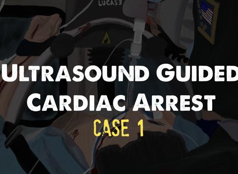 Ultrasound Guided Cardiac Arrest (case 1)