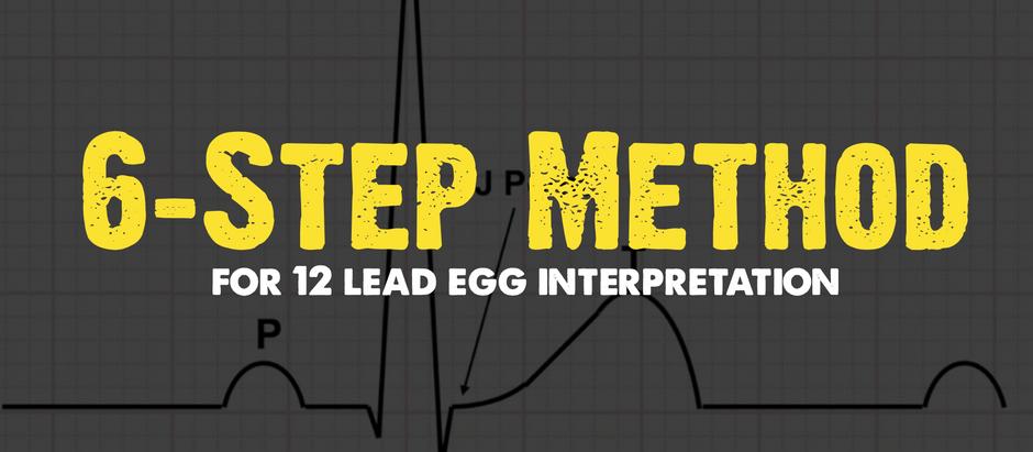 6-Step Method for 12-Lead ECG Interpretation