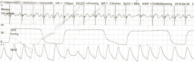 Dead Space and Pediatric Mechanical Ventilation