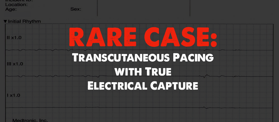 A Rare Case of Transcutaneous Pacing (TCP) with True Electrical and Mechanical Capture