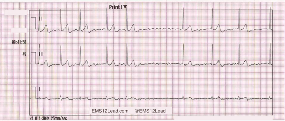 35-year-old male presents to the fire station with palpitations after heavy alcohol consumption