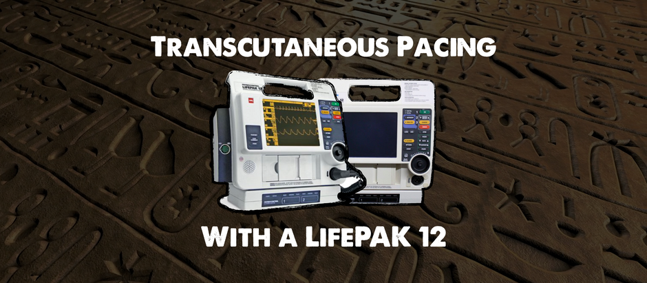 Transcutaneous Pacing (TCP) with a LifePak 12
