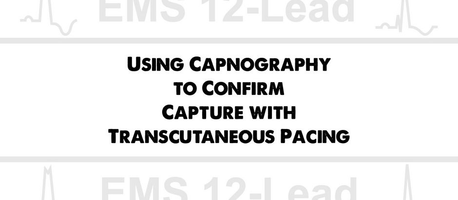 Using Capnography to Confirm Capture with Transcutaneous Pacing (TCP)