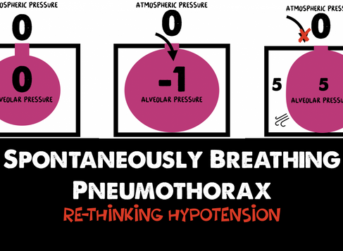 Spontaneously Breathing Pneumothorax - Re-thinking Hypotension