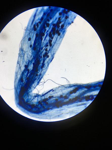 Hongos Micorrízicos Arbusculares