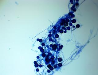 Myths & Truths about Mycorrhizae