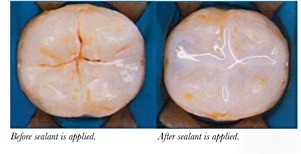 What are Sealants and who should get Sealants?