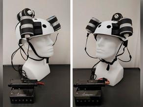 Casco electromagnético ayuda a reducir 31% tumor cerebral mortal