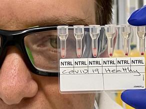 Logran método que detecta Covid-19 de muestra de sangre en 20 minutos