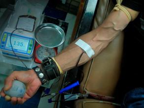 Los pacientes con hemofilia adquirida mueren a menudo sin un diagnóstico