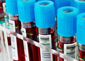 Un análisis de sangre detectaría cuáles son las personas con mayor o menor riesgo de morir por covid