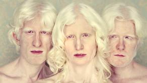 Albinismo é mais comum entre a população negra