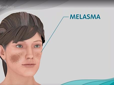 Pesquisa avalia tratamento para melasma com resultados positivos.