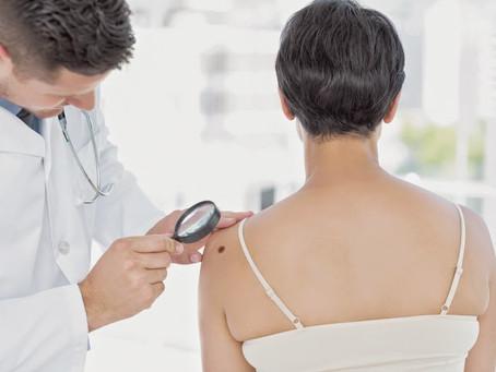 Câncer de pele: Brasil ganha Dezembro laranja