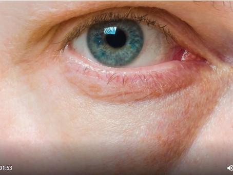 Entenda a causa das olheiras e quais cuidados devem ser tomados
