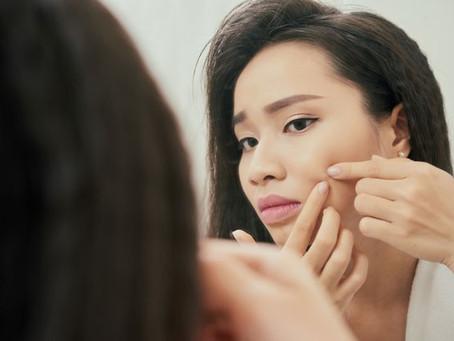 """""""Qual é a diferença da acne que aparece na pele adulta e na de adolescentes? """" Saiba mais"""