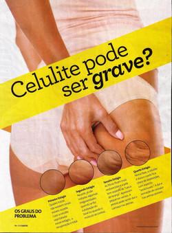 Viva_Saúde_-_Outubro_2015_-_Celulite_-_Capa