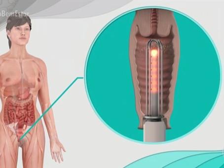 Laser íntimo auxilia mulheres com incontinência urinária