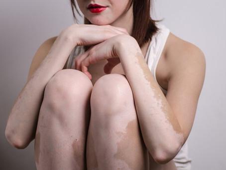 O site da Revista Cláudia fala sobre a doença autoimune, o Vitiligo