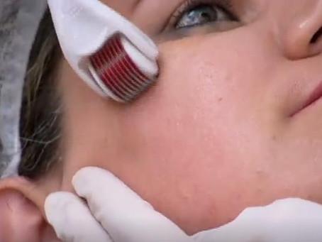 Tratamentos estéticos melhoram qualidade de vida das mulheres