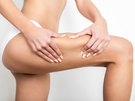 Celulite: enzima injetável ajuda a tratar casos moderados a graves