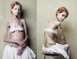 anoressia-nervosa