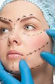 Rejuvenecimiento o estiramiento facial Colombia