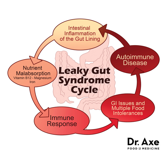 What is Leaky Gut and What can YOU do about it?