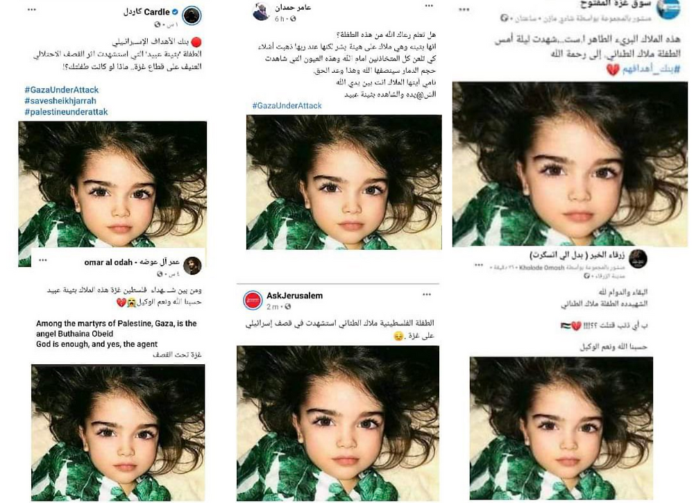 """The girl claimed to be from """"Gaza"""" torned by the Israeli attack is actually a Russian child which is doing well"""