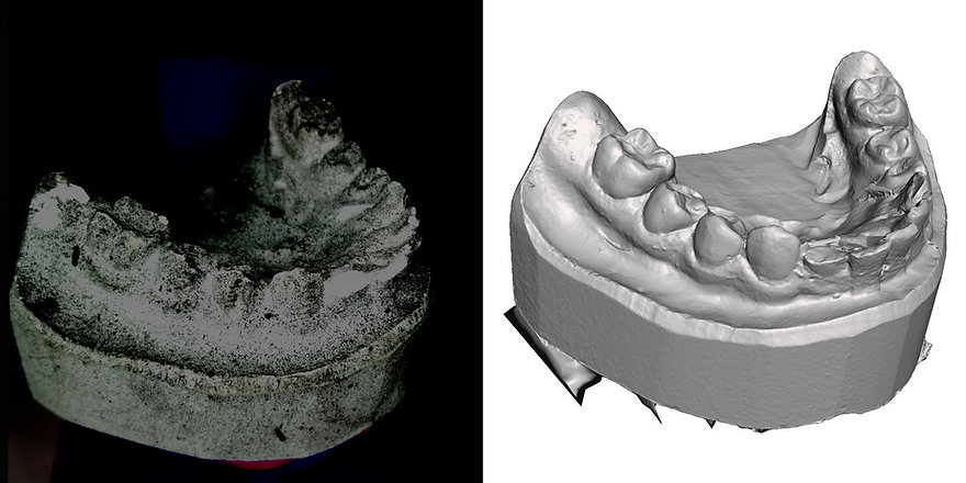 dental model-3D-scan with OpenScan Pi-co